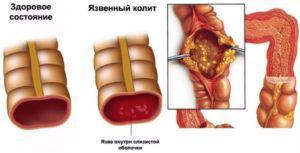 Воспаление толстого кишечника у собак